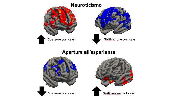 Immagini del cervello