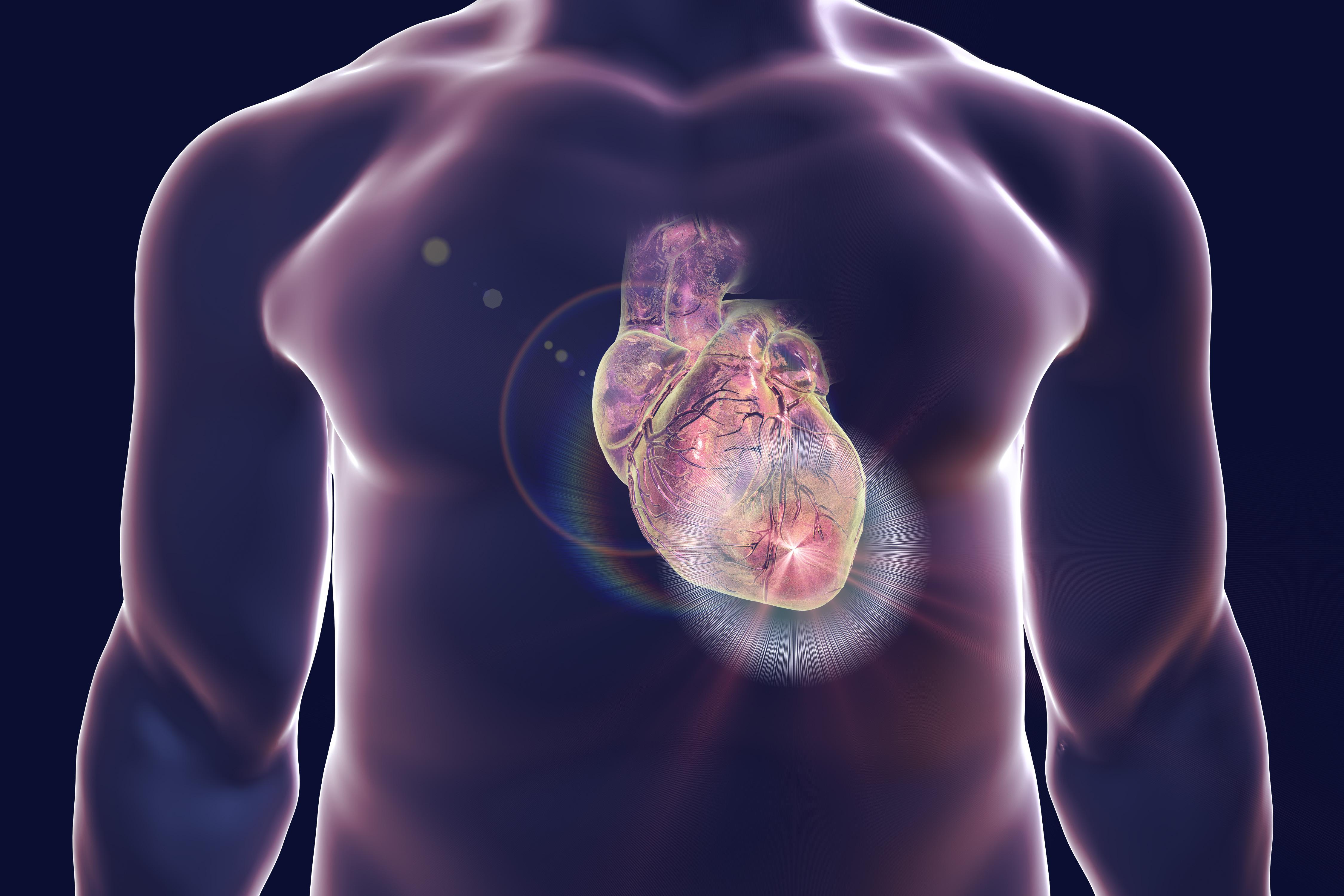 Illustrazione che raffigura un attacco cardiaco