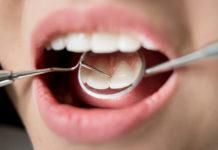 Bocca femminile dal dentista