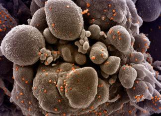 Cellula attaccata dal coronavirus (Credit Niaid)